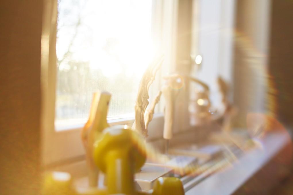 Fotografi på vårdmottagning. Skelett av en hand i motljus